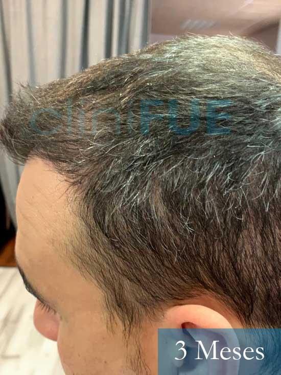 Sebastian 30 años Murcia trasplante capilar turquia 3 meses 3