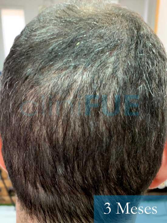 Fran 34 años Murcia trasplante capilar turquia 3 meses despues de la segunda operacion 2