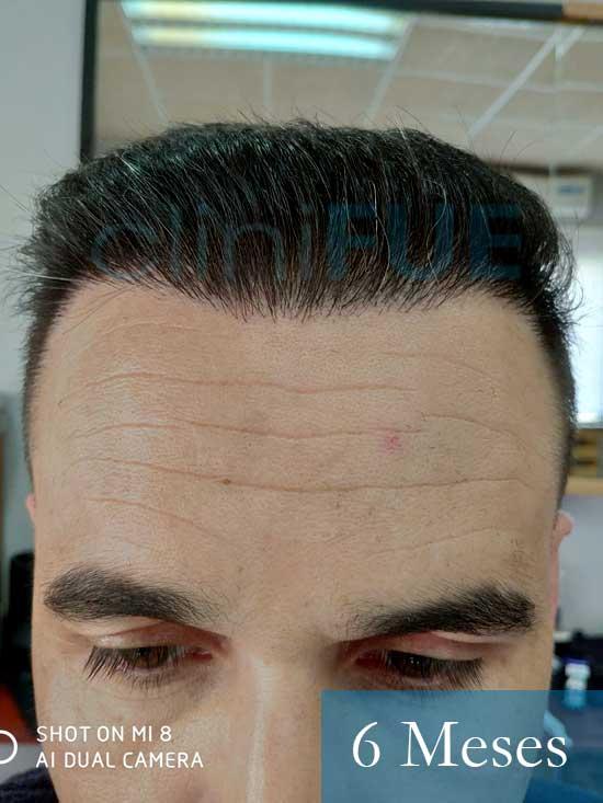 Fran 34 años Murcia trasplante capilar turquia 6 meses despues de la segunda operacion