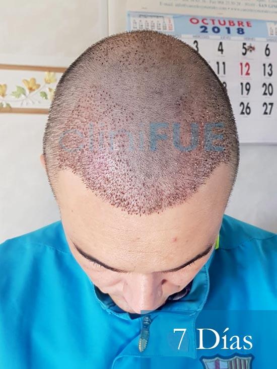 Fran 34 años Murcia trasplante capilar turquia 7 dias despues de la segunda operacion