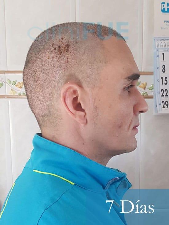 Fran 34 años Murcia trasplante capilar turquia 7 dias despues de la segunda operacion 2