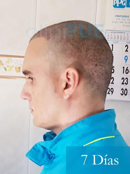 Fran 34 años Murcia trasplante capilar turquia 7 dias despues de la segunda operacion 3