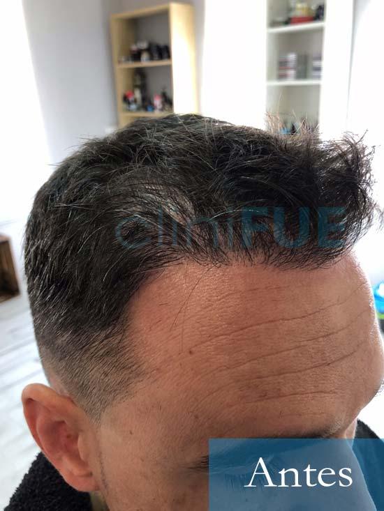 Fran 34 años Murcia trasplante capilar turquia Antes 2