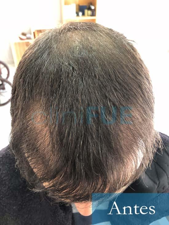 Fran 34 años Murcia trasplante capilar turquia Antes de la segunda operacion