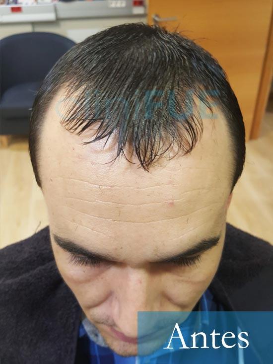 Fran 34 años Murcia trasplante capilar turquia Antes