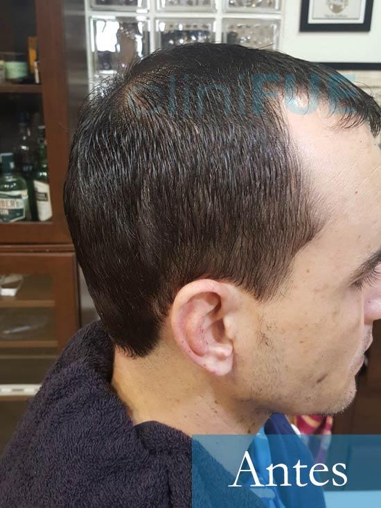 Fran 34 años Murcia trasplante capilar turquia Antes 3