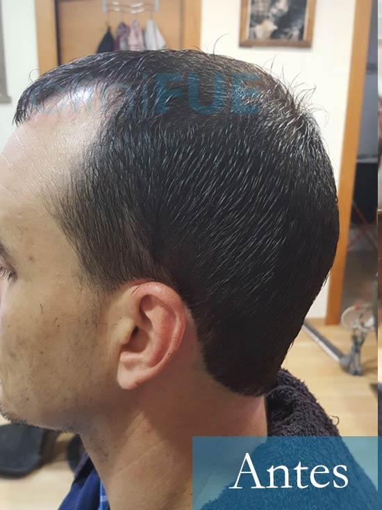 Fran 34 años Murcia trasplante capilar turquia Antes 4