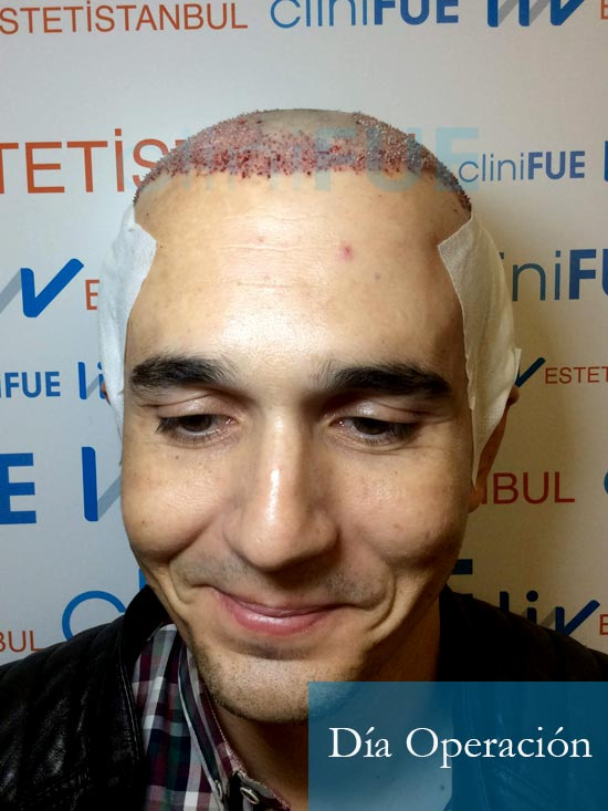 Fran 34 años Murcia trasplante capilar turquia dia de la segunda operacion