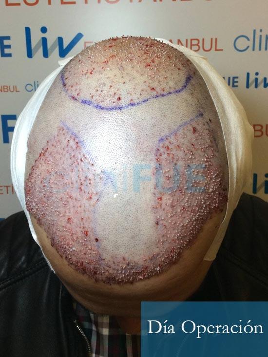 Fran 34 años Murcia trasplante capilar turquia dia de la segunda operacion 2