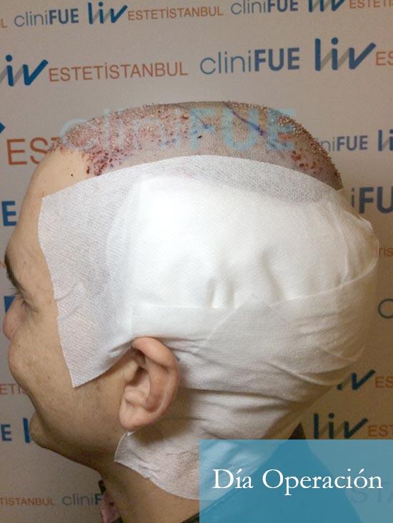Fran 34 años Murcia trasplante capilar turquia dia de la segunda operacion 4