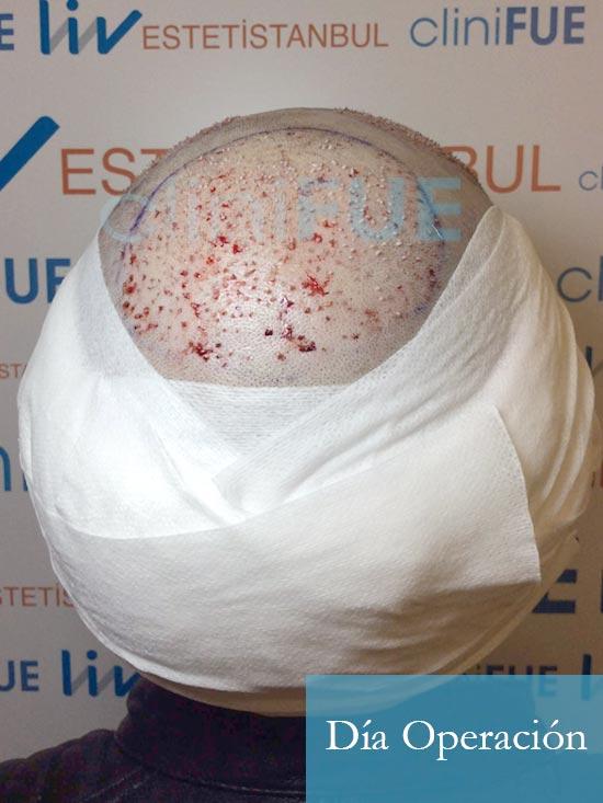 Fran 34 años Murcia trasplante capilar turquia dia de la segunda operacion 5