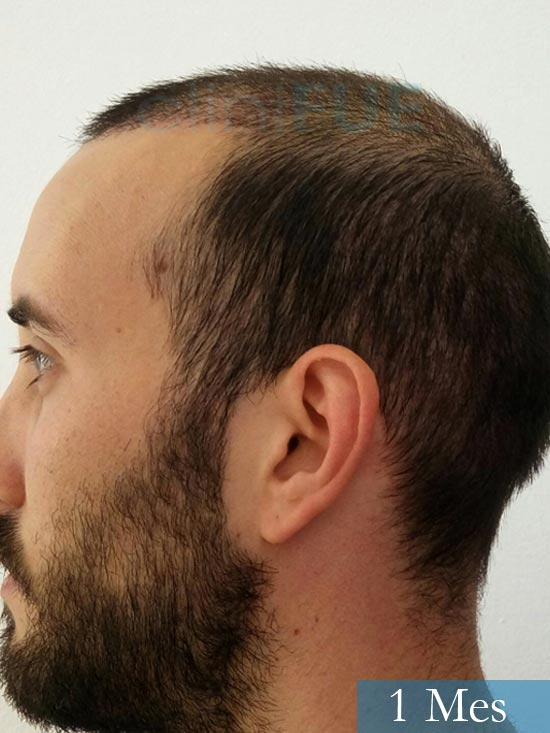 Jonathan 31 años Las Palmas trasplante capilar turquia 1 mes 5