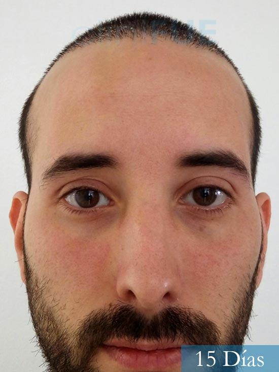 Jonathan 31 años Las Palmas trasplante capilar turquia 15 dias