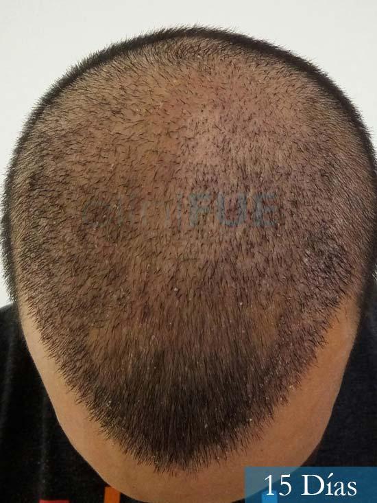 Jonathan 31 años Las Palmas trasplante capilar turquia 15 dias 3