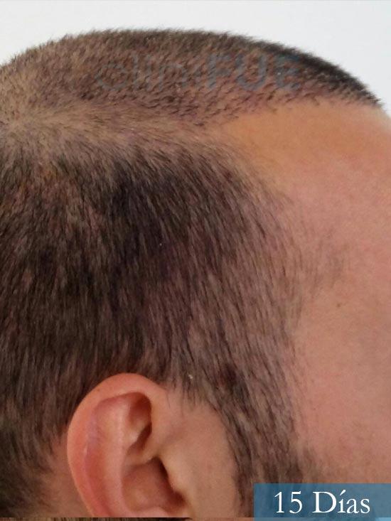 Jonathan 31 años Las Palmas trasplante capilar turquia 15 dias 4