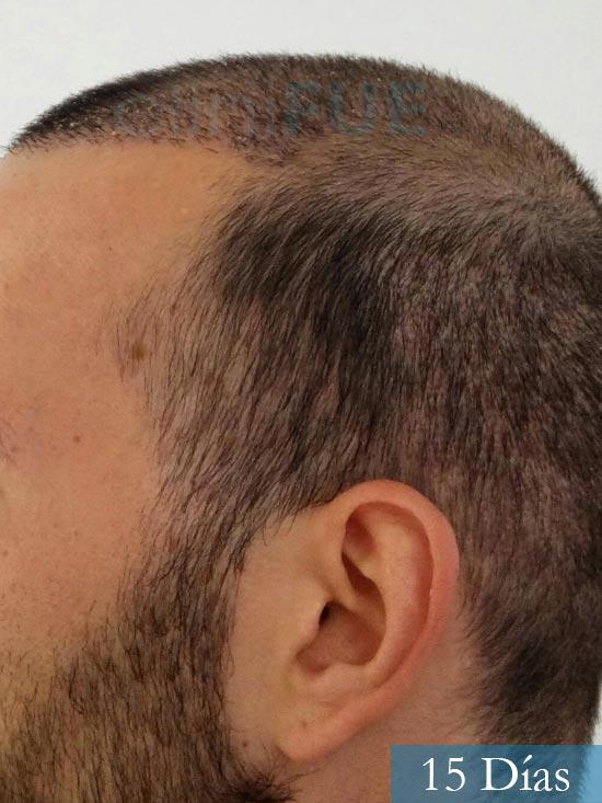 Jonathan 31 años Las Palmas trasplante capilar turquia 15 dias 5