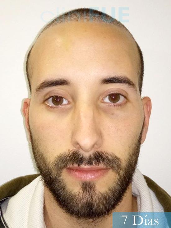 Jonathan 31 años Las Palmas trasplante capilar turquia 7 dias