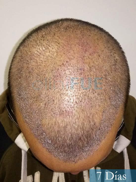 Jonathan 31 años Las Palmas trasplante capilar turquia 7 dias 3