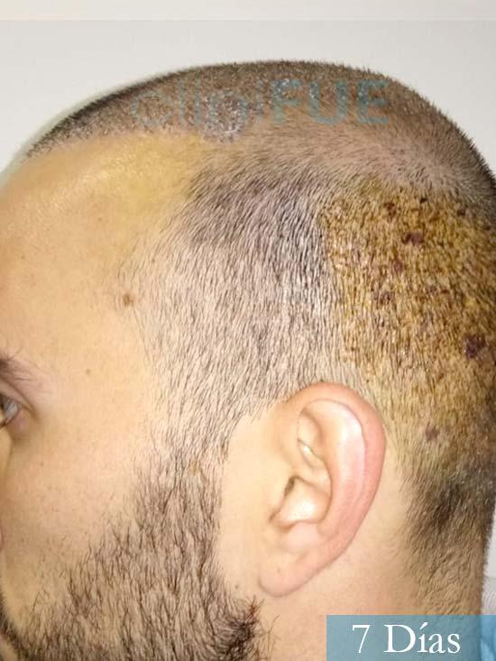 Jonathan 31 años Las Palmas trasplante capilar turquia 7 dias 5