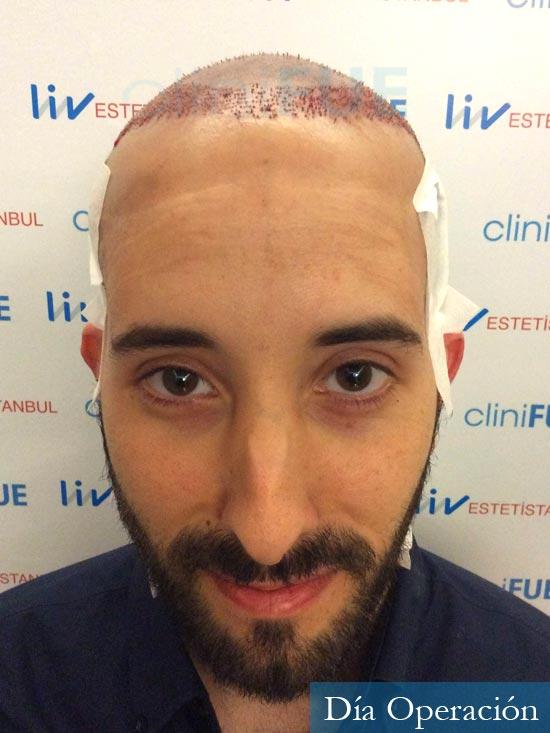 Jonathan 31 años Las Palmas trasplante capilar turquia dia operacion
