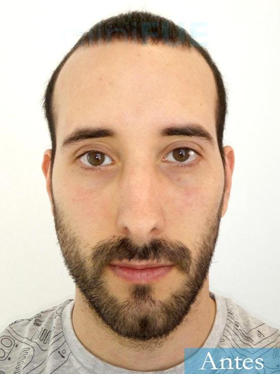 Jonathan 31 años Las Palmas trasplante capilar turquia Antes