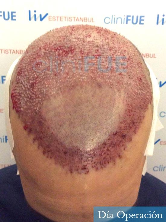 Jonathan 31 años Las Palmas trasplante capilar turquia dia operacion 2