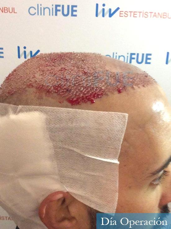 Jonathan 31 años Las Palmas trasplante capilar turquia dia operacion rapada