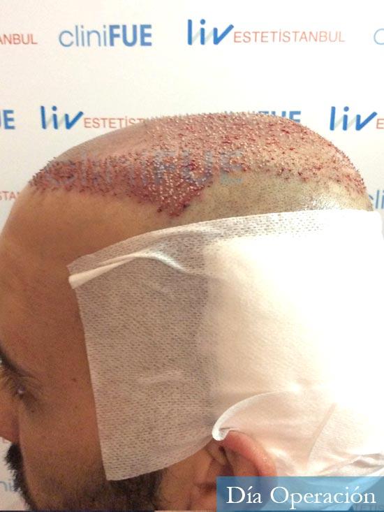 Jonathan 31 años Las Palmas trasplante capilar turquia dia operacion 4