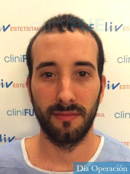 Jonathan 31 años Las Palmas trasplante capilar turquia antes dia operacion