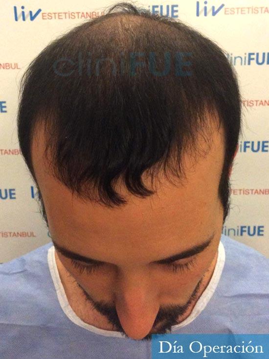 Jonathan 31 años Las Palmas trasplante capilar turquia antes dia operacion 2