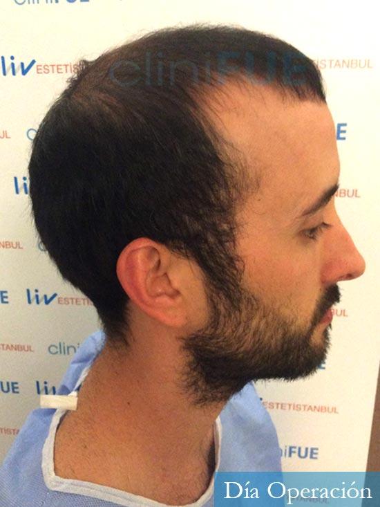 Jonathan 31 años Las Palmas trasplante capilar turquia antes dia operacion 4