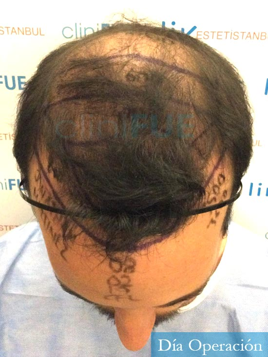 Jonathan 31 años Las Palmas trasplante capilar turquia dia operacion diseno 2