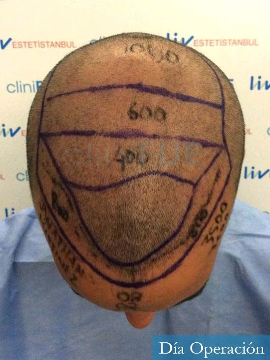 Jonathan 31 años Las Palmas trasplante capilar turquia dia operacion rapada 4