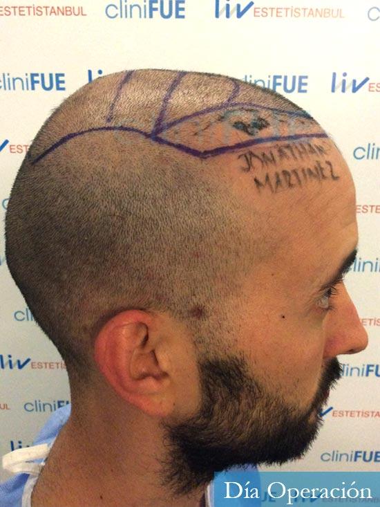 Jonathan 31 años Las Palmas trasplante capilar turquia dia operacion rapada 5
