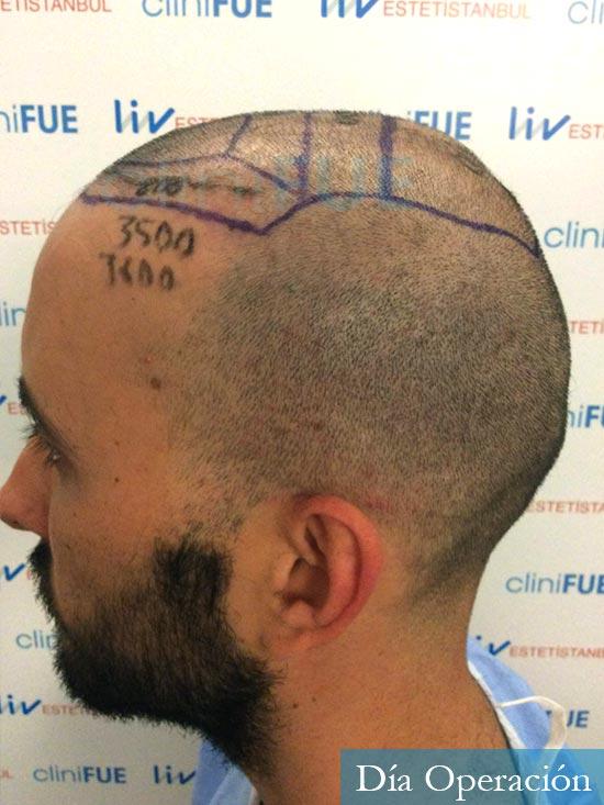 Jonathan 31 años Las Palmas trasplante capilar turquia dia operacion rapada 6