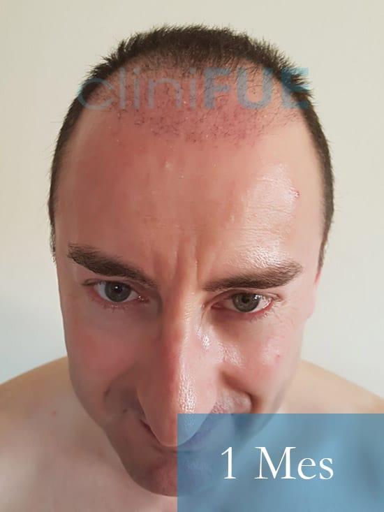 Jose-Ignacio-33-trasplante-pelo-1-mes-1