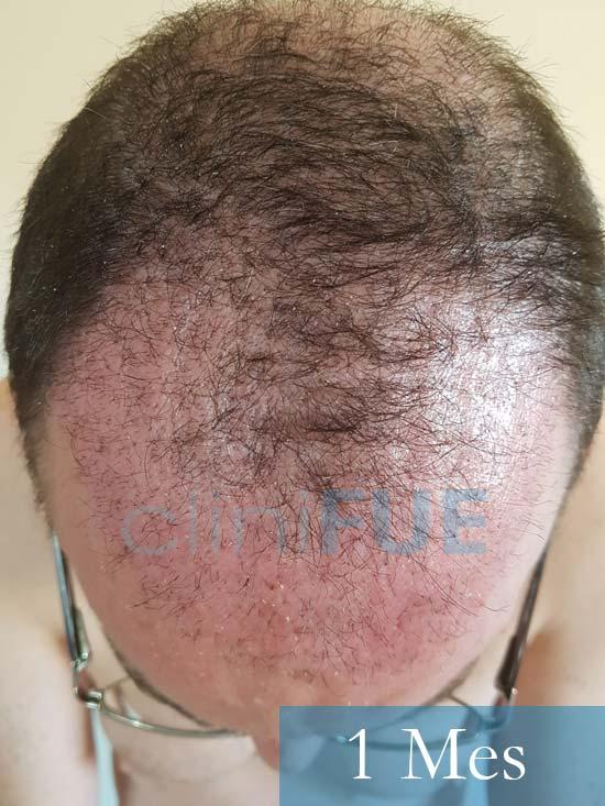 Jose-Ignacio-33-trasplante-pelo-1-mes-2