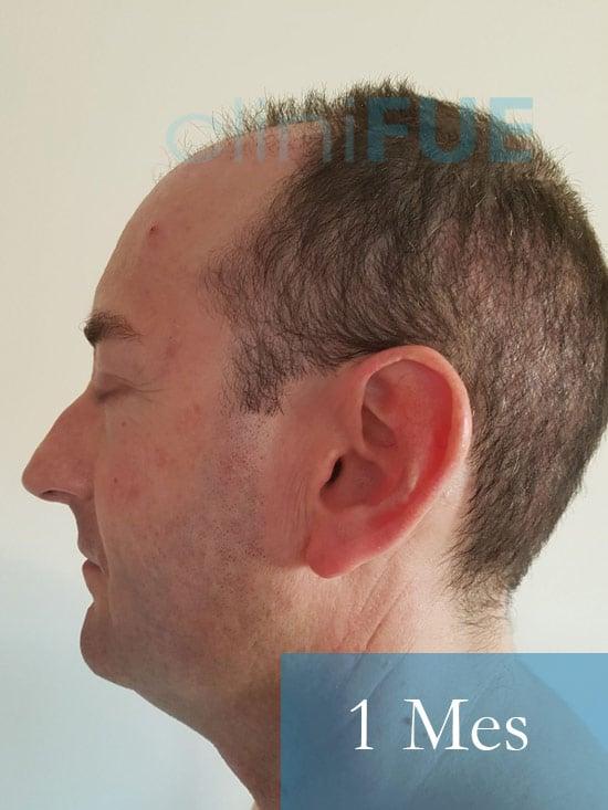 Jose-Ignacio-33-trasplante-pelo-1-mes-4