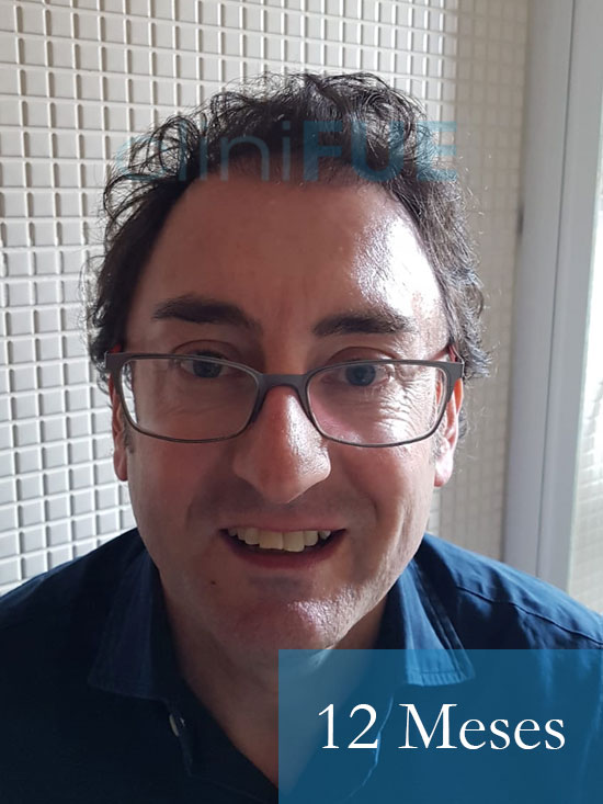 Jose-Ignacio-33-trasplante-pelo-12-meses 1
