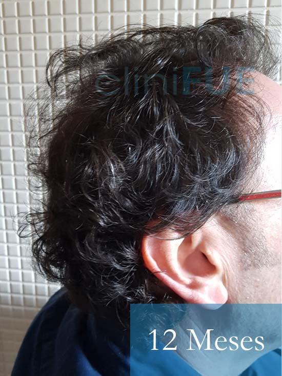 Jose-Ignacio-33-trasplante-pelo-12-meses 3