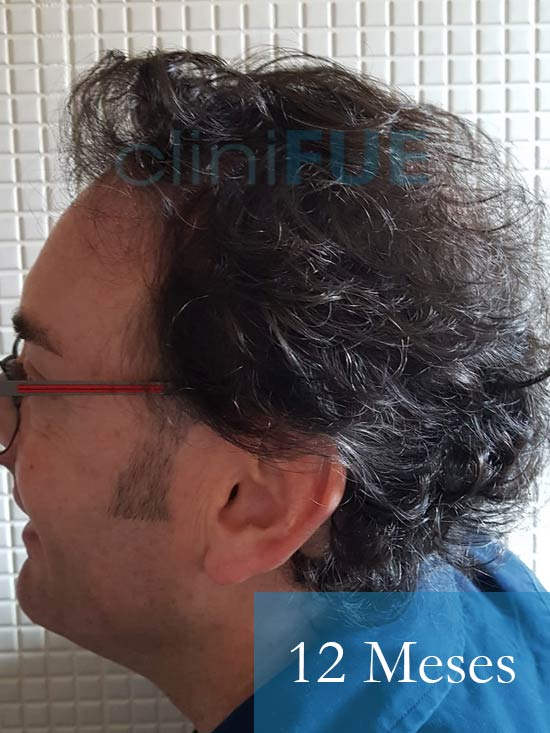 Jose-Ignacio-33-trasplante-pelo-12-meses 4