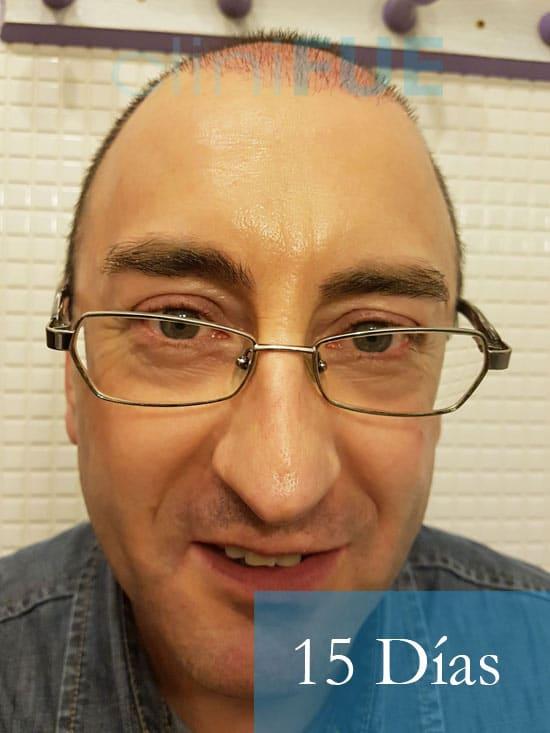 Jose-Ignacio-33-trasplante-pelo-15-dias-1