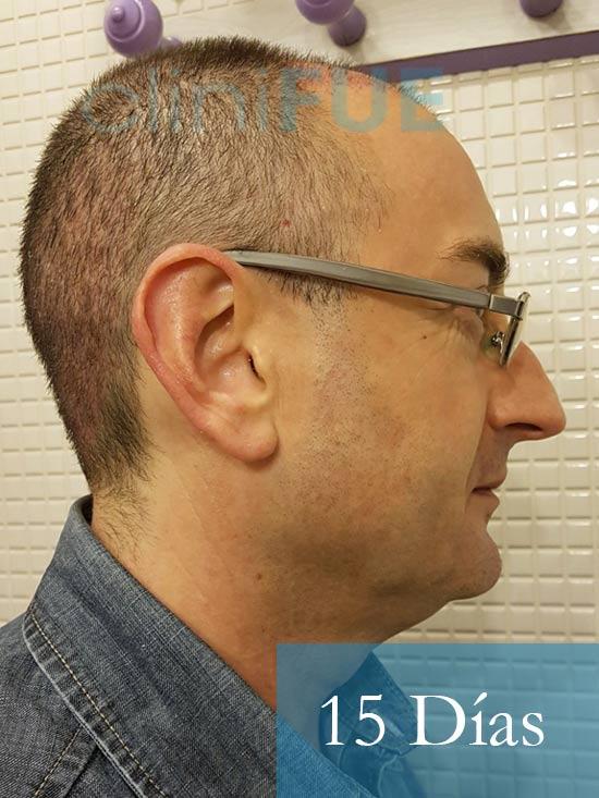 Jose-Ignacio-33-trasplante-pelo-15-dias-3