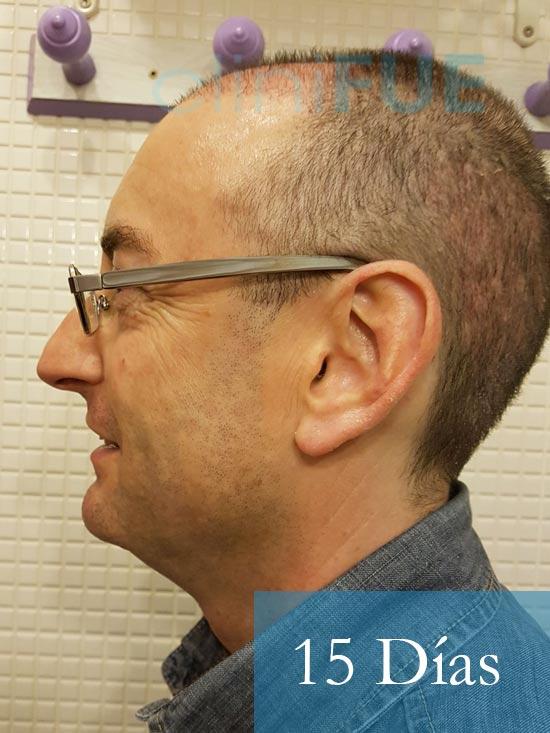 Jose-Ignacio-33-trasplante-pelo-15-dias-4