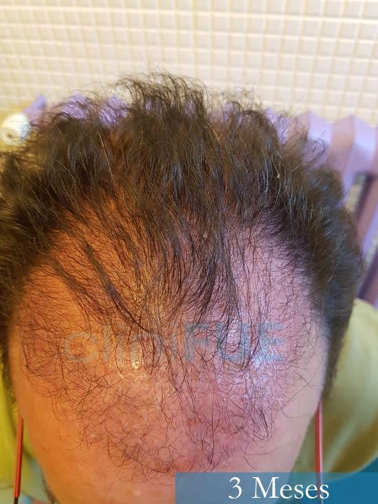 Jose-Ignacio-33-trasplante-pelo-3-meses-2