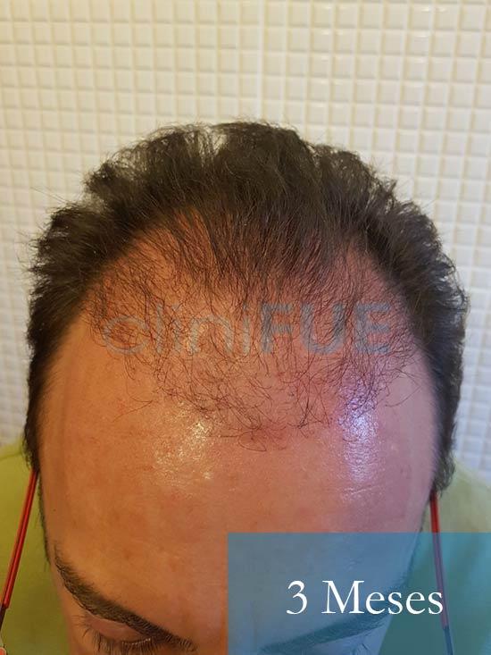 Jose-Ignacio-33-trasplante-pelo-3-meses-1