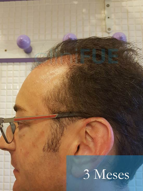 Jose-Ignacio-33-trasplante-pelo-3-meses-4