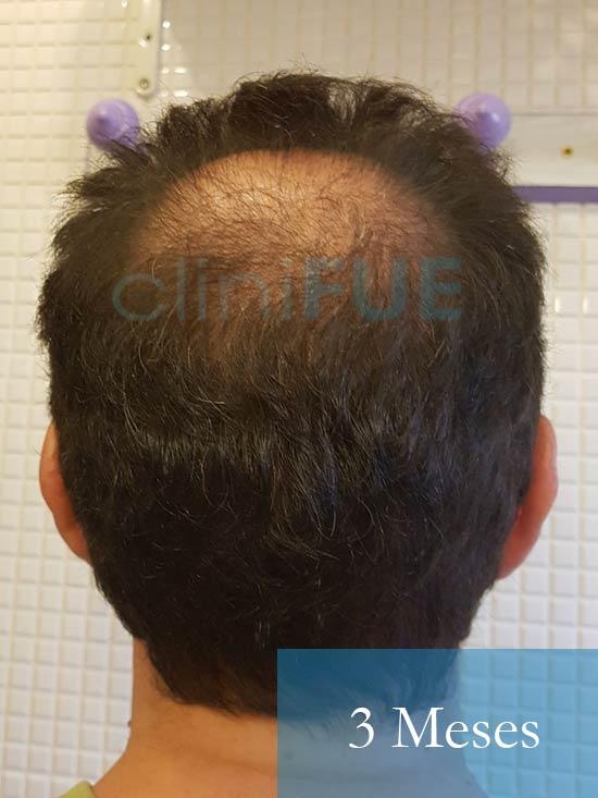 Jose-Ignacio-33-trasplante-pelo-3-meses-3