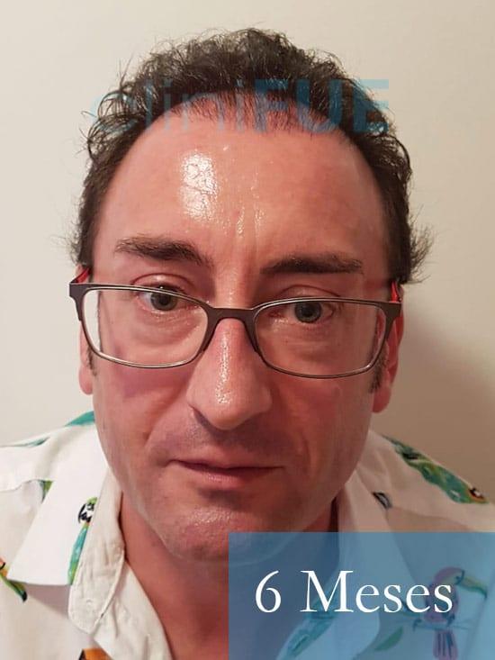 Jose-Ignacio-33-trasplante-pelo-6-meses-1