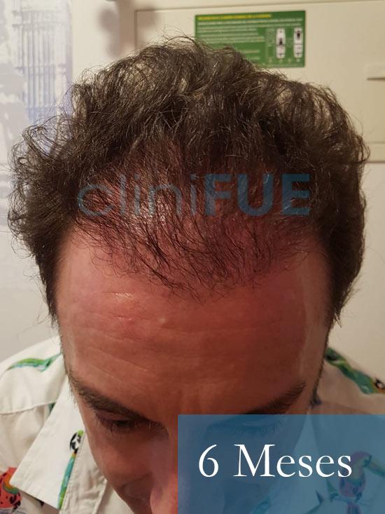 Jose-Ignacio-33-trasplante-pelo-6-meses 2